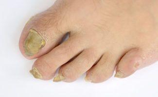 wat doen tegen schimmelinfectie