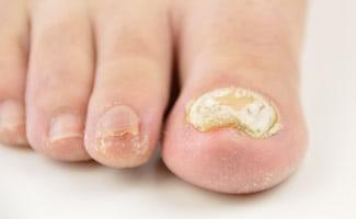 Schimmelinfectie van de nagels